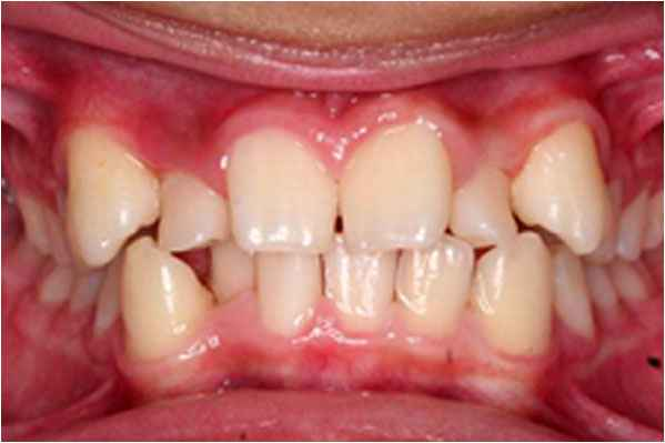 Orthodontics Before
